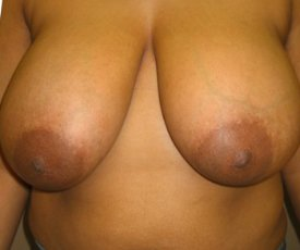 Manhattan Breast Reduction before 5